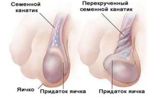 Причины болей в яичках у мужчин список вероятных заболеваний и их симптомы