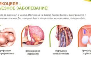 Операция Мармара при варикоцеле и восстановление после неё