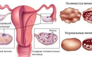 Гормоны при поликистозе яичников