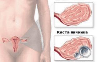 Киста яичника: симптомы, причины, лечение