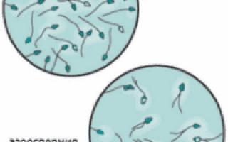 Азооспермия: формы, причины, симптомы, лечение