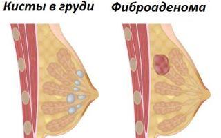 Мастопатия и ЭКО