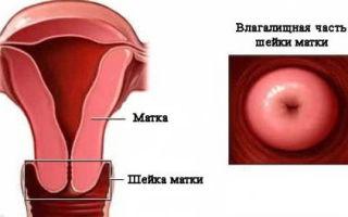 Патология матки