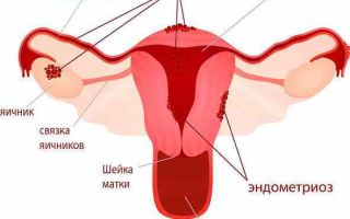 Чем может быть опасен эндометриоз и как избежать последствий