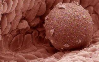 Как повысить антимюллеров гормон: симптомы и причины низкого уровня