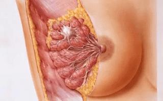 Вызывает ли процедура эко рак?