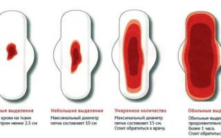 Биопсия шейки матки кровотечениеКровотечение после биопсии шейки матки особенности операции, противопоказания, негативные последствияВыделения после биопсии шейки матки