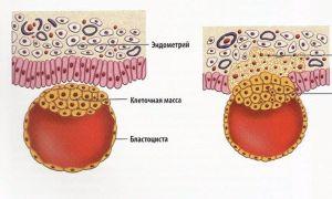 Кровянистые выделения при прикреплении эмбриона к матке (имплантация)
