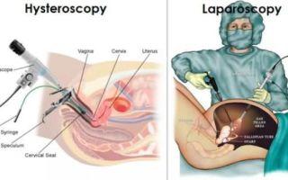 Лапароскопия и гистероскопия одновременно