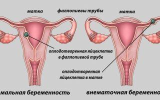 Современные методы лечения внематочной беременности и возможные последствия