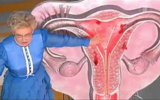 Какие лекарства выписывают после чистки матки