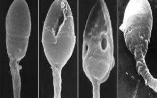 Как улучшить качество спермограммы для зачатия и повысить подвижность сперматозоидов