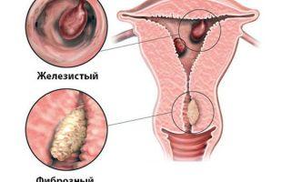 Как проводится процедура выскабливания полипа в матке возможные методы удаления и отзывы женщин