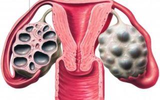Мультифолликулярные яичники: клиническая картина, диагностика и лечение
