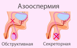 Почему сперма может быть прозрачной