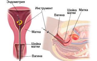 Что такое пайпель-биопсия эндометрия