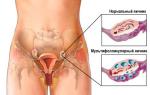Что делать и как лечить мультифолликулярные яичники