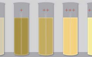 Желтоватый цвет спермы: о чем это говорит
