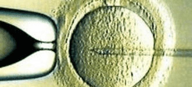 Метод искусственная инсеминация (ИИ)
