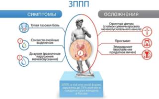 ЗППП у мужчин: разновидности, симптомы, профилактика