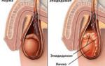 Симптомы и лечение острого и хронического эпидидимита у мужчин