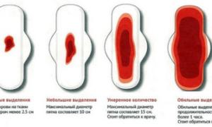 Гипоменорея (скудные месячные): причины, симптомы и лечение