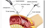Диагностическая лапароскопия в области гинекологии