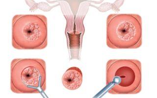 Биопсия шейки матки Сургитроном
