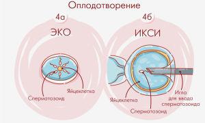 ЭКО в естественном циклеЕЦ как проходит, алгоритм проведения процедуры