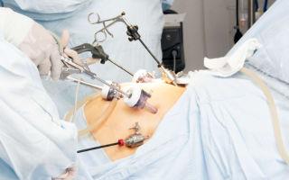 Болезненные месячные после лапароскопии