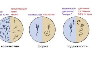 Подготовка к спермограмме общие принципы и правила сдачи