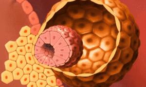 Как проходит имплантация эмбриона
