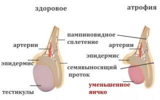 Почему возникает атрофия яичек и как можно этого избежать