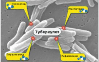 Все про туберкулез половых органов