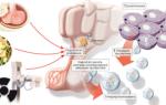 Гиперпролактинемия: симптомы у мужчин и женщин, причины, лечение