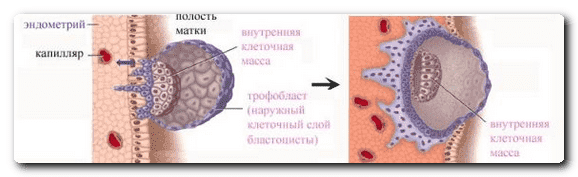 подсадка эмбрионов