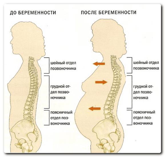 Лечение боли спины при беременности