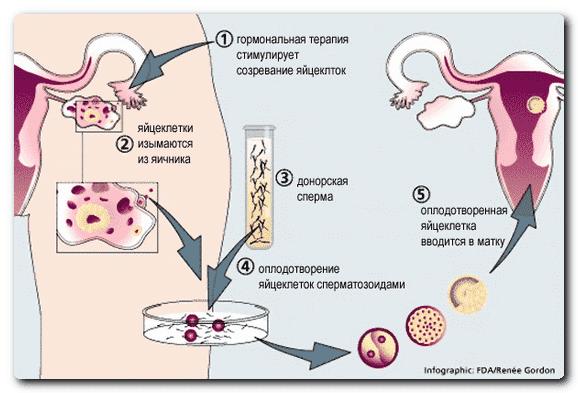 статины от холестерина польза и вред норма