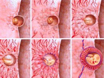 Имплантация эмбриона в стенку матки