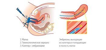 Перенос эмбрионов в матку