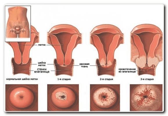 рак яичников и матки