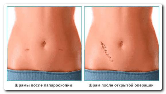шрамы после лапороскопии