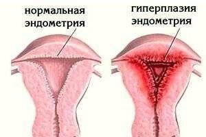 Эндометрий перед протоколом ЭКО