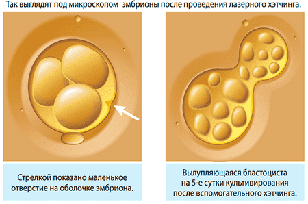 эмбрион после хетчинга