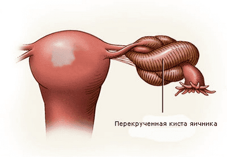 перекрут яичника
