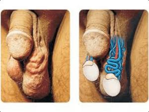 визуальный вид варикоцеле