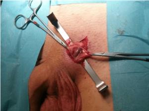 операция по удалению варикоцелей