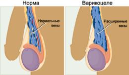 Варикоцеле яичка у мужчин: симптомы, причины, признаки, лечение