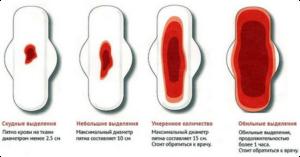 скудные месячные или гипоменорея