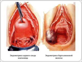 Эндометриоз влагалища